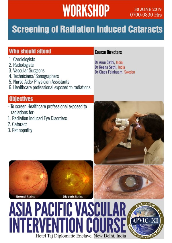 Screening of Radiation Induced Cataracts